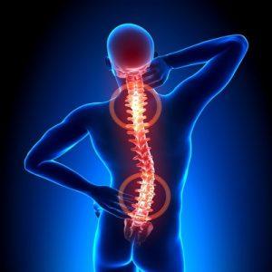 coloana vertebrala, dureri de spate(1)