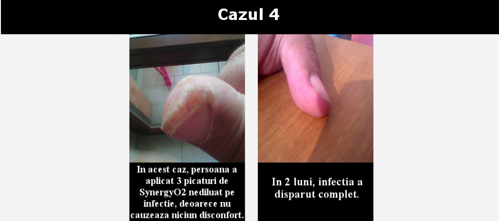 cazul 4