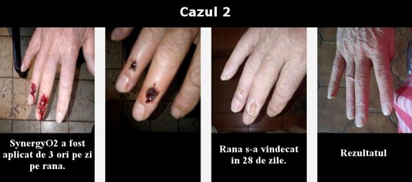 caazul 2
