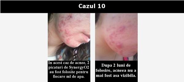 cazul 10