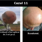 cazul 11