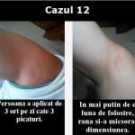cazul 12