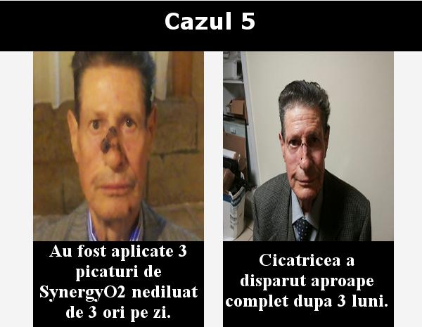 cazul 5