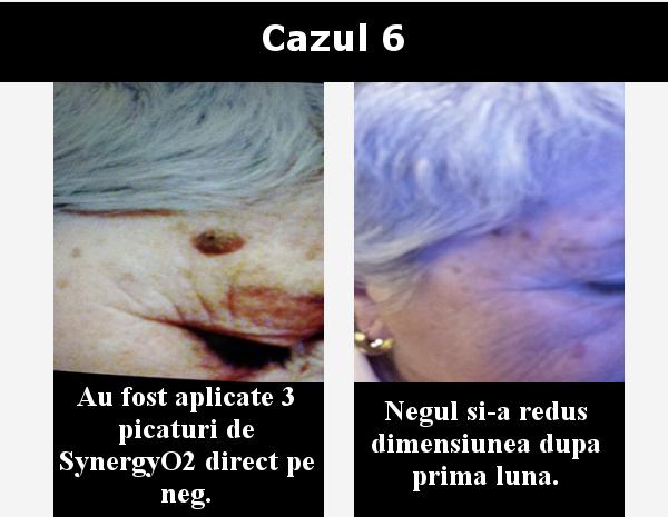 cazul 6