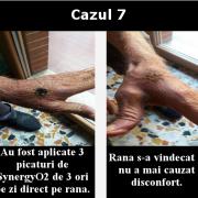 cazul 7