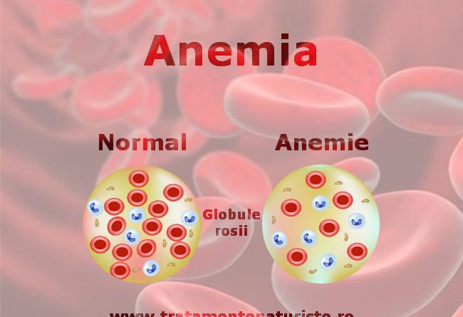anemie efecte