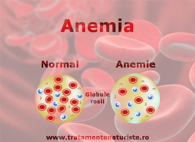 poza articol anemie