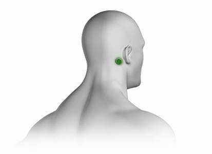 Sinus Placement